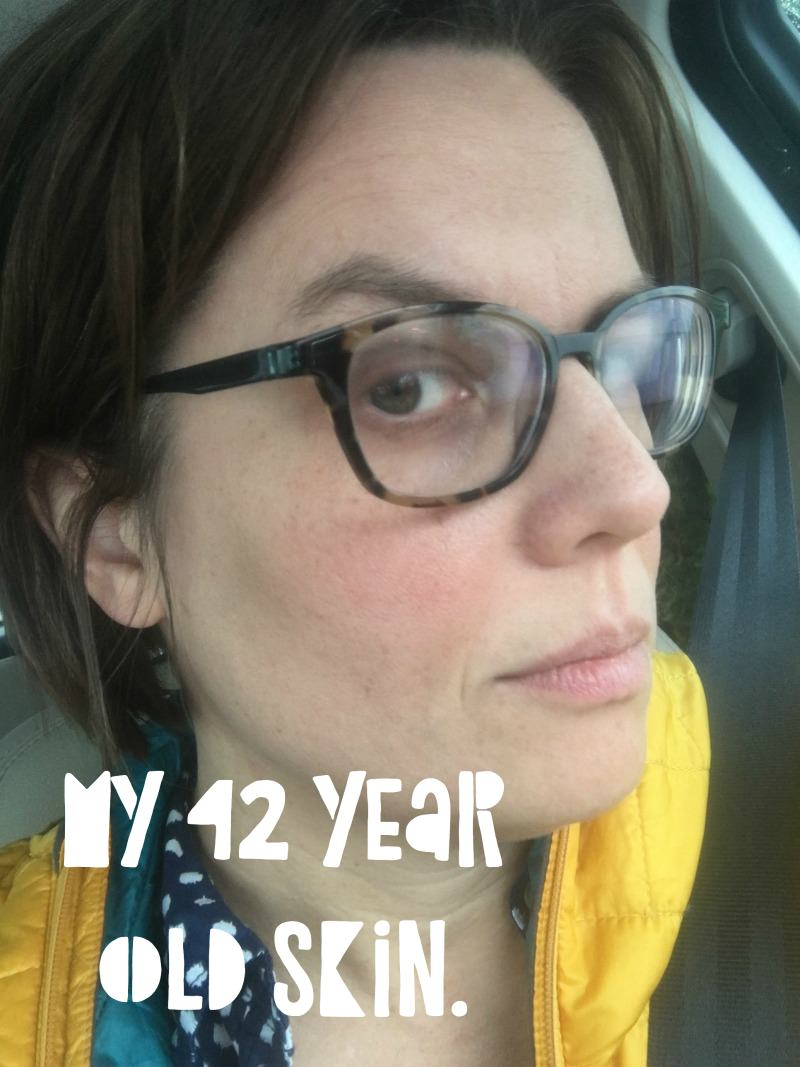 42 year old skin